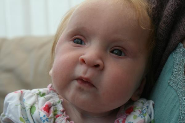 Kidderminster Shuttle: RARE CONDITION: Six-month-old Megan Ford and her family are meeting the families of eight other UK sufferers of Trisomy 9 Mosaic (T9M) for the first time.